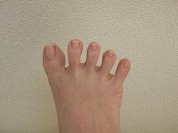足の指 腫れ 原因