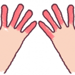 しもやけ 手の指 イラスト