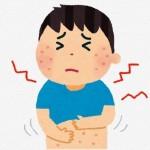 溶連菌感染症の子供の症状と治療方法は?出席停止はいつまで?