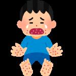 手足口病の子供の症状と感染力。保育園の登園はいつから?