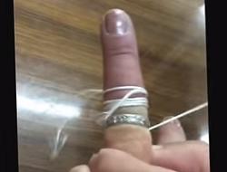 指 タコ糸