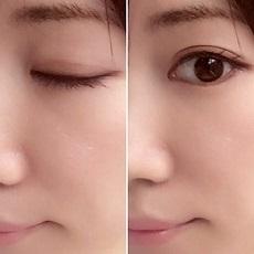 まぶた 目 女性